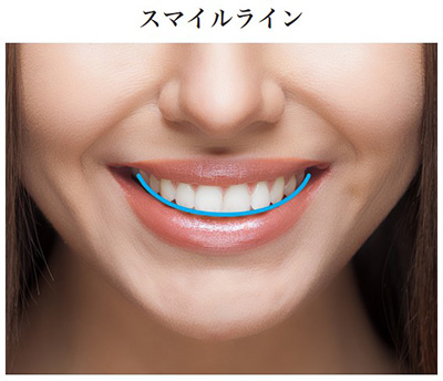 smileline