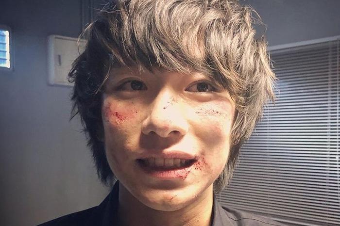 注目俳優・落合モトキが『ニッポンノワール』に!傷だらけの姿に反響